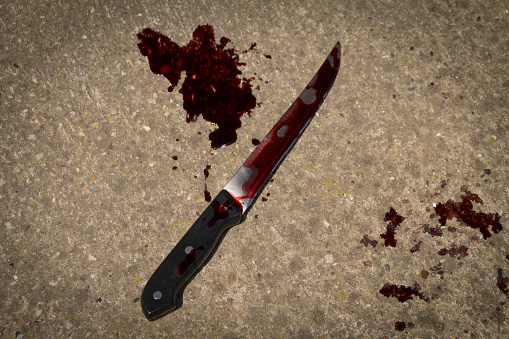 Eleven year old Boy's hand chopped off